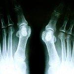 Fußchirurgie Orthopädie Siegburg